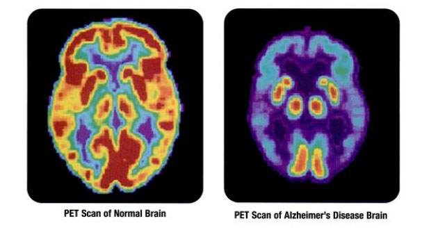 Biotech Partnership to Develop Diagnostic Assay for Alzheimer's Disease