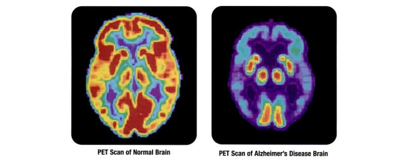 Possible 'Best-in-Class' Alzheimer's Drug Candidate Offers 'Disruptive' Potential