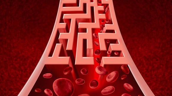 bloodmaze580