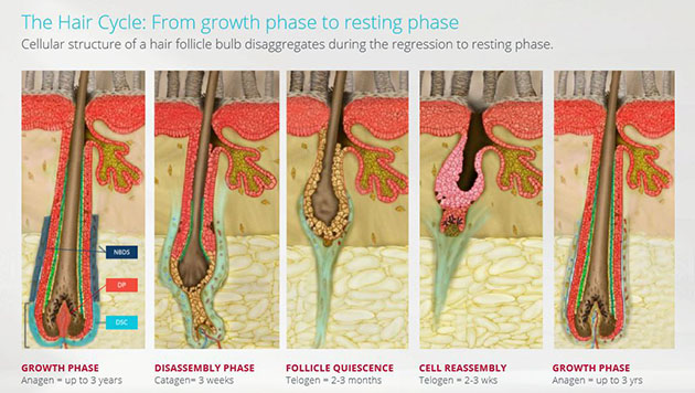 RepliCels Phase 1 Trial for Hair Loss Completed Successfully