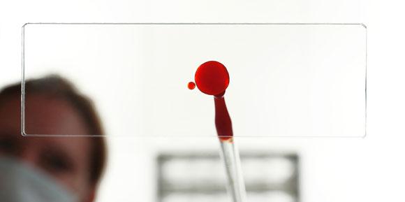 blooddrop580
