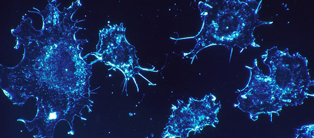INmune Bio Targeting Cancer, Alzheimer's and NASH Simultaneously
