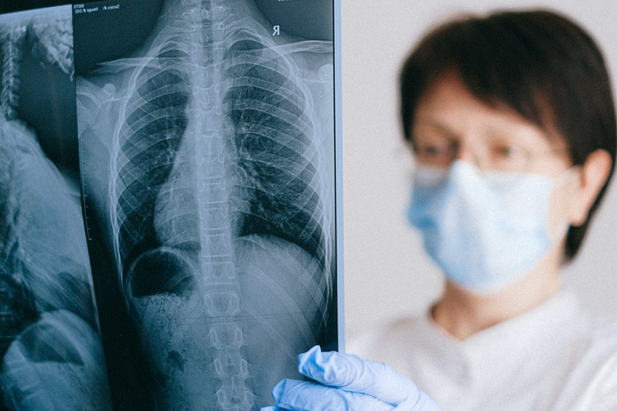 lungs xray doctor w mask Pulmonary Sarcoidosis Trial